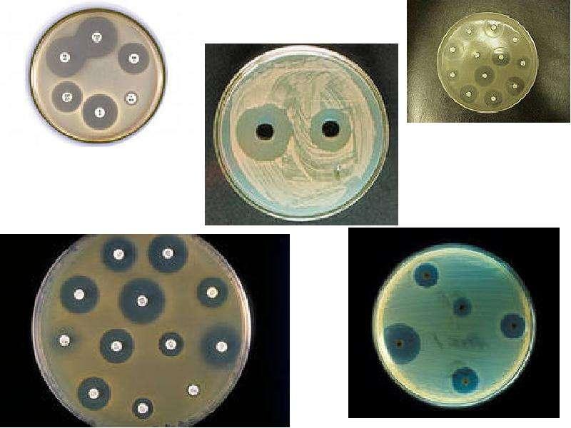 Экология микроорганизмов. Влияние факторов окружающей среды на микроорганизмы, слайд 22