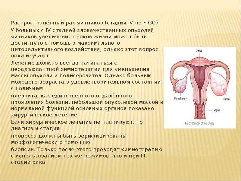 Распространённый рак яичников (стадия IV по FIGO) У больных с IV стадией злокачественных опухолей яи