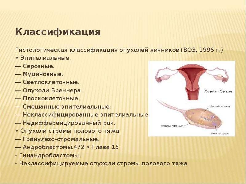 Классификация Классификация Гистологическая классификация опухолей яичников (ВОЗ, 1996 г. ) • Эпител