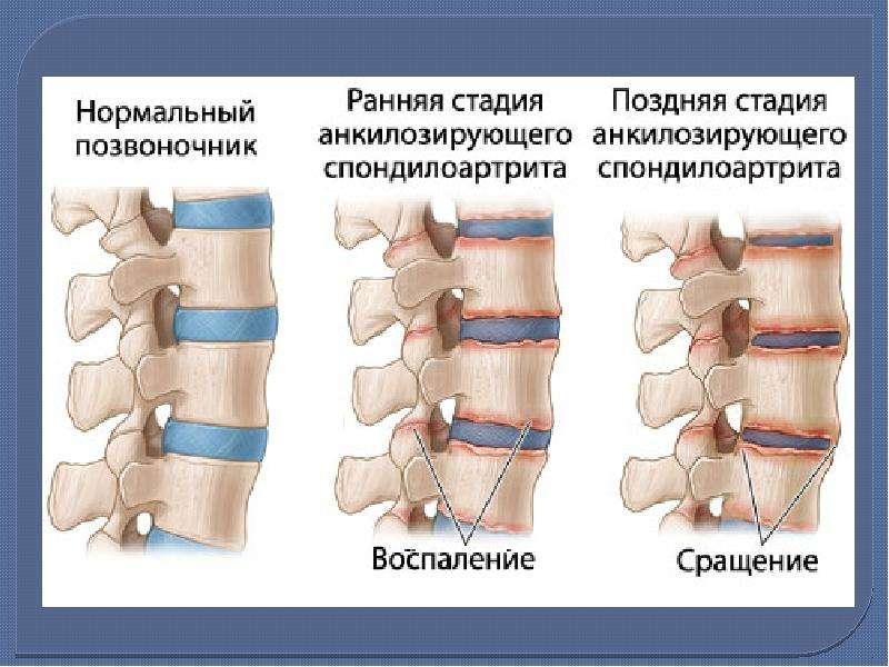 Болезнь Бехтерева (анкилозирующий спондилоартрит), рис. 11