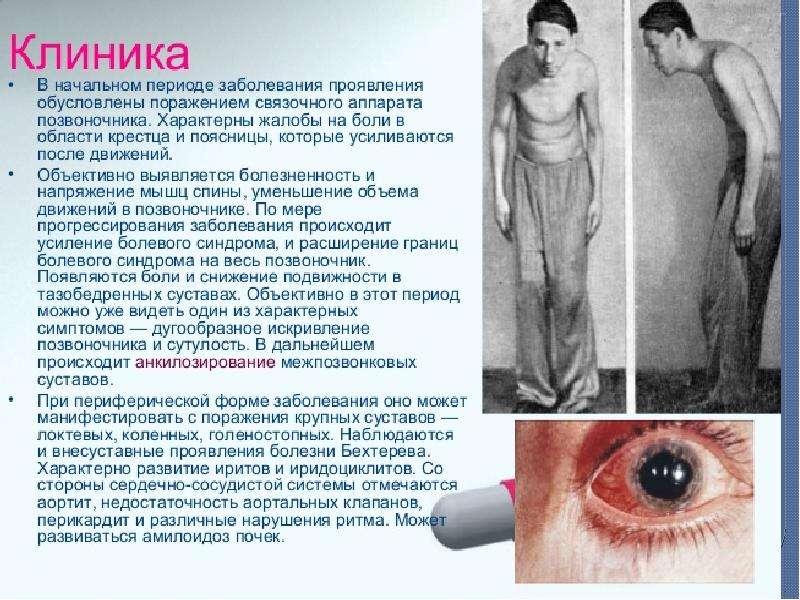 Болезнь Бехтерева (анкилозирующий спондилоартрит), рис. 14