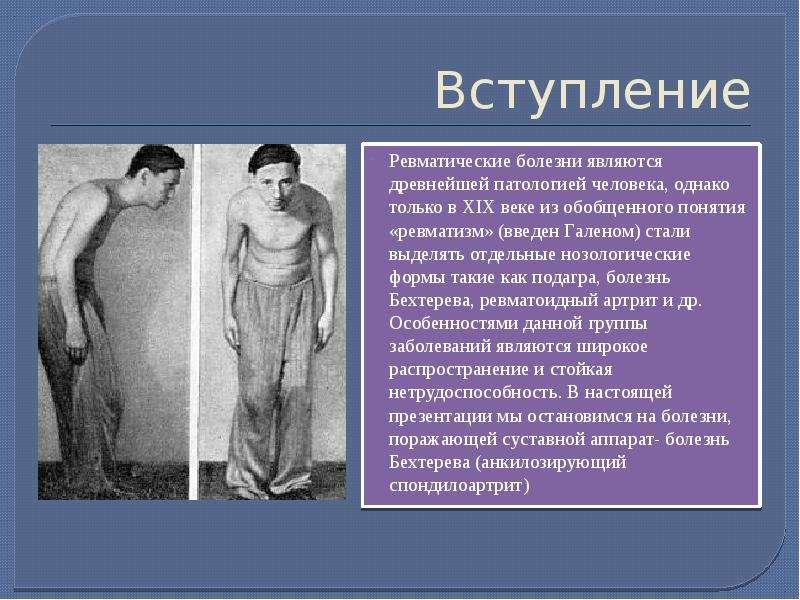 Вступление Ревматические болезни являются древнейшей патологией человека, однако только в XIХ веке и