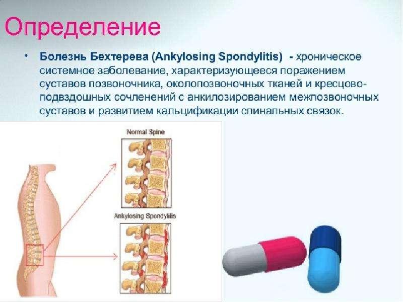 Болезнь Бехтерева (анкилозирующий спондилоартрит), рис. 4