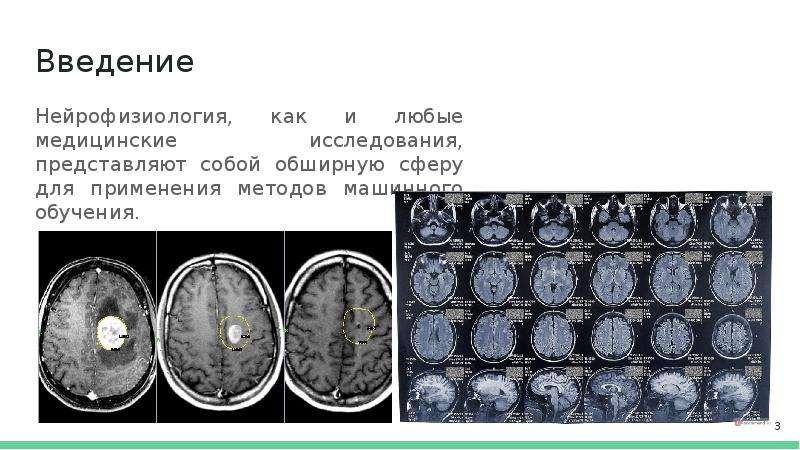 Введение Нейрофизиология, как и любые медицинские исследования, представляют собой обширную сферу дл