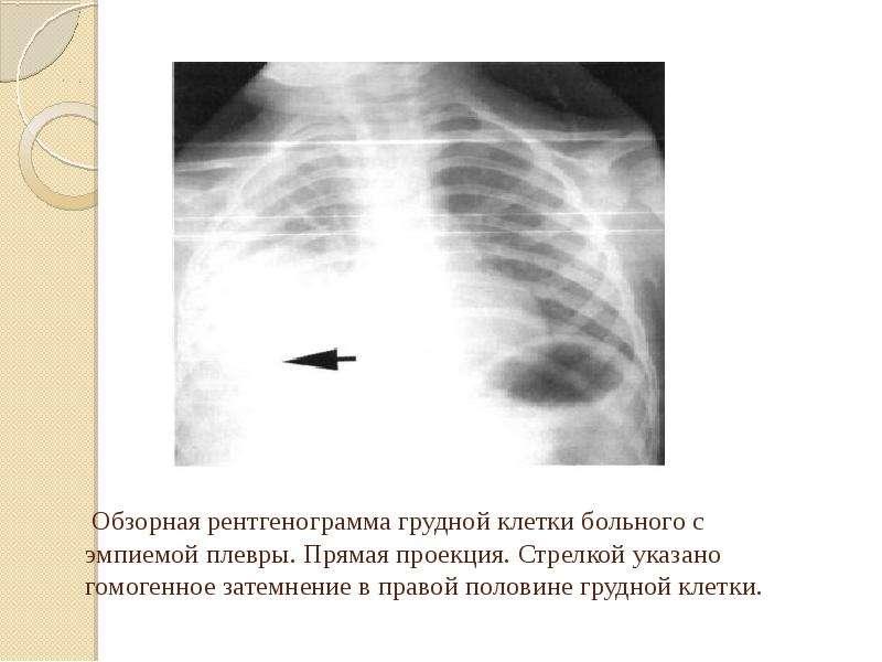Обзорная рентгенограмма грудной клетки больного с эмпиемой плевры. Прямая проекция. Стрелкой указано