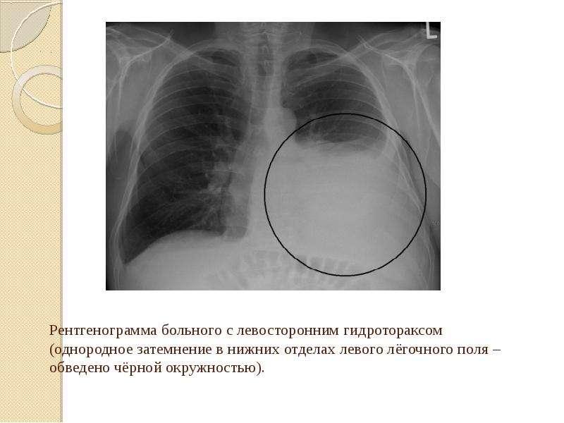 Рентгенограмма больного с левосторонним гидротораксом (однородное затемнение в нижних отделах левого