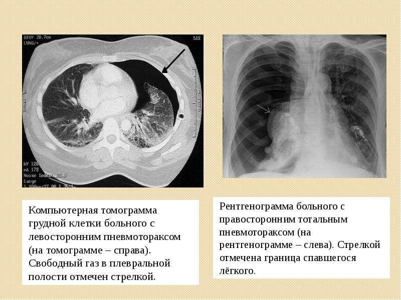 Компьютерная томограмма грудной клетки больного с левосторонним пневмотораксом (на томограмме – спра