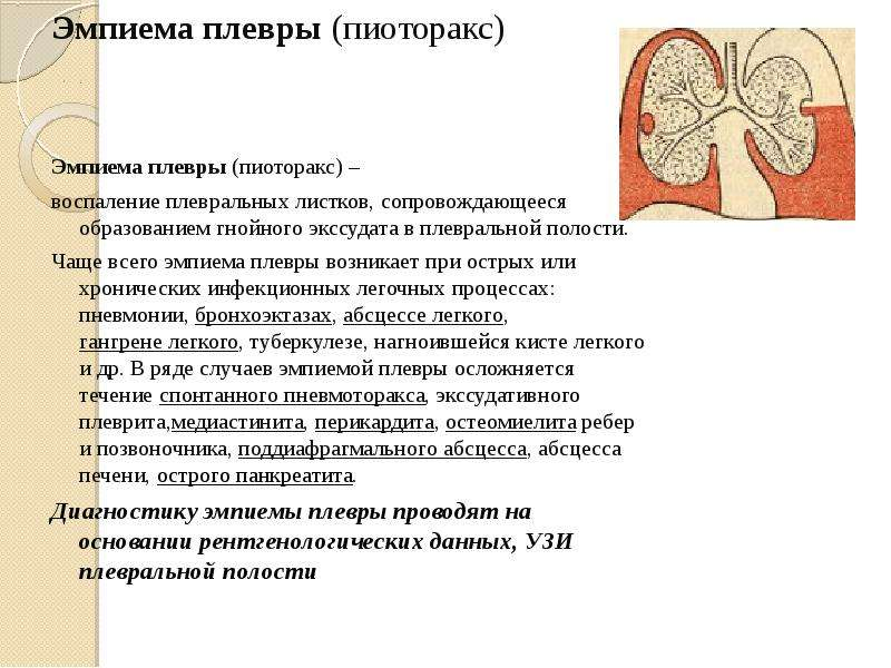 Эмпиема плевры (пиоторакс) Эмпиема плевры (пиоторакс) – воспаление плевральных листков, сопровождающ
