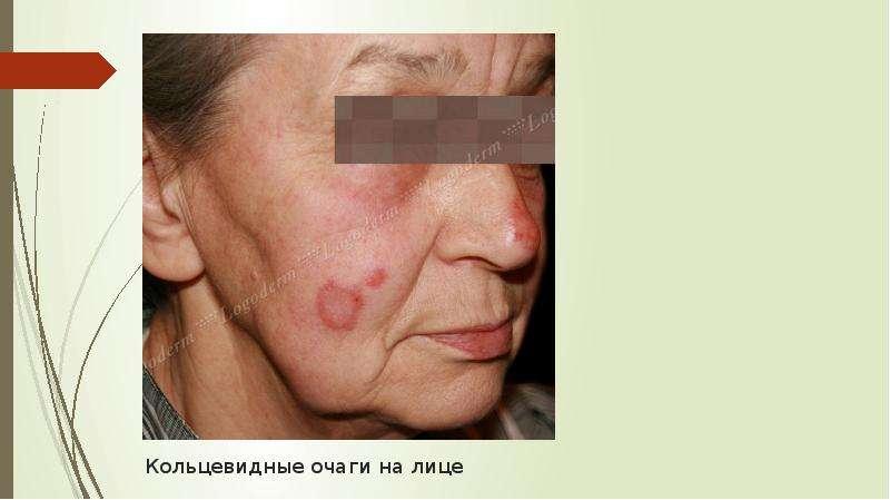Кольцевидные очаги на лице