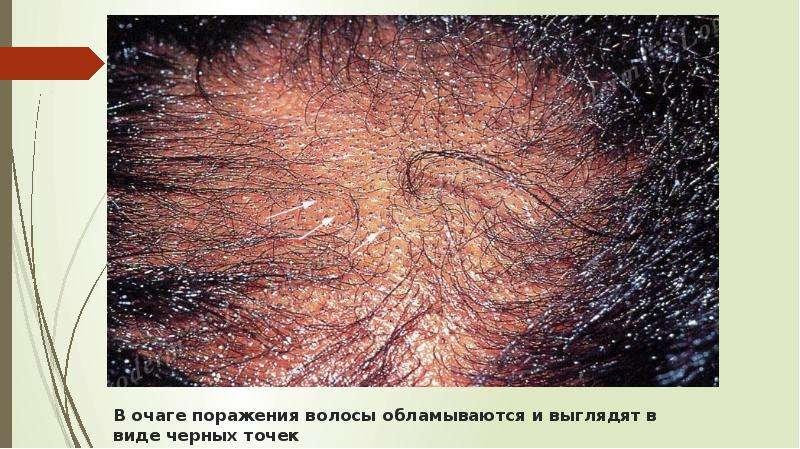В очаге поражения волосы обламываются и выглядят в виде черных точек