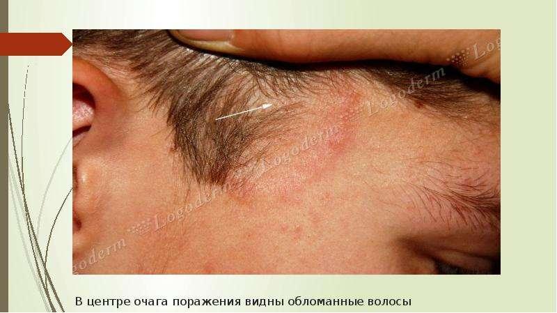 В центре очага поражения видны обломанные волосы