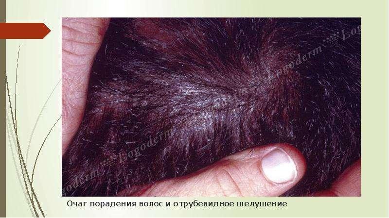 Очаг порадения волос и отрубевидное шелушение