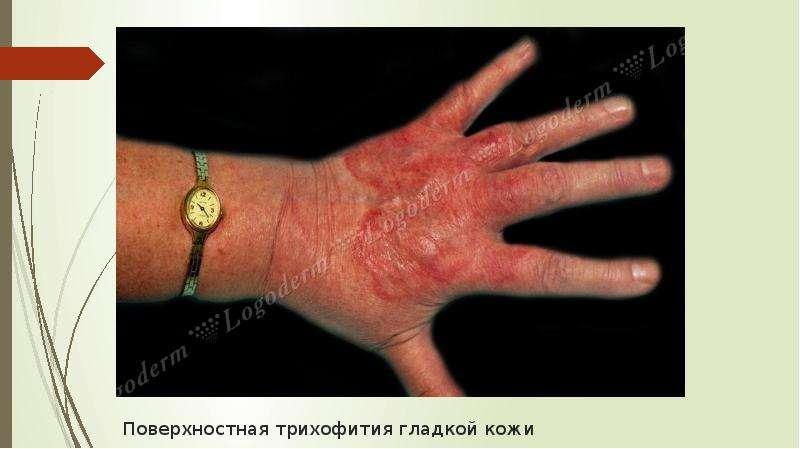 Поверхностная трихофития гладкой кожи