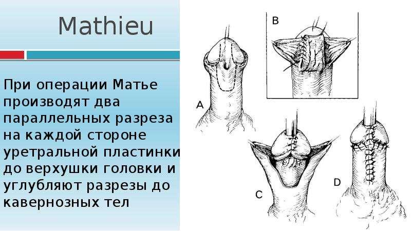 Mathieu При операции Матье производят два параллельных разреза на каждой стороне уретральной пластин