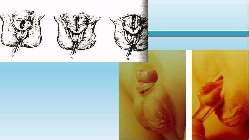 Гипоспадии и эписпадии, рис. 13