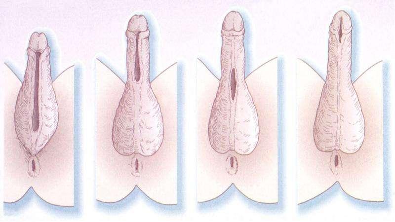 Гипоспадии и эписпадии, рис. 5