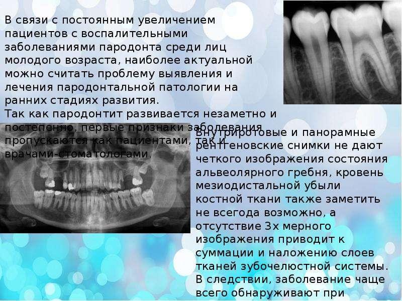 Ферменты как маркеры заболеваний зубочелюстной системы, слайд 5