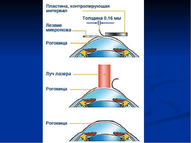 Лазеры. Лазерное излучение и его основные параметры. Лазерная медицина, слайд 39