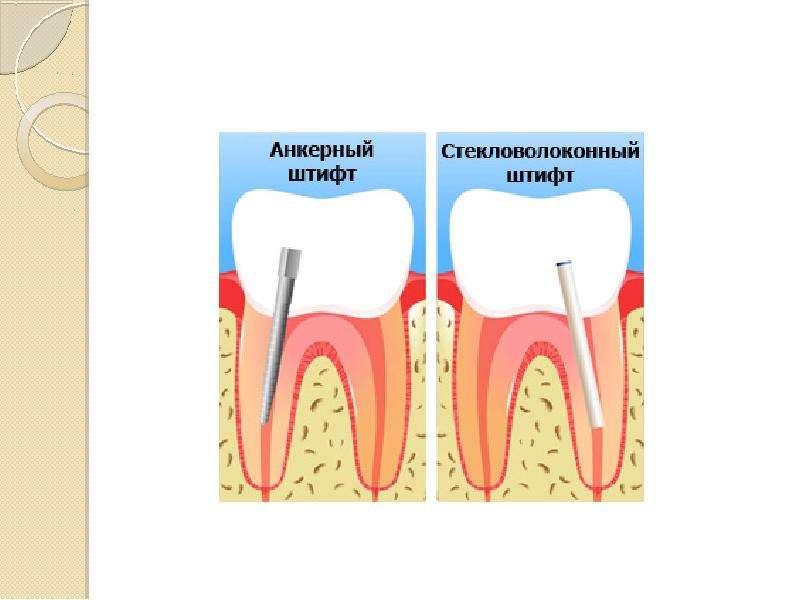 Применение штифтов в терапевтической стоматологии, слайд 12