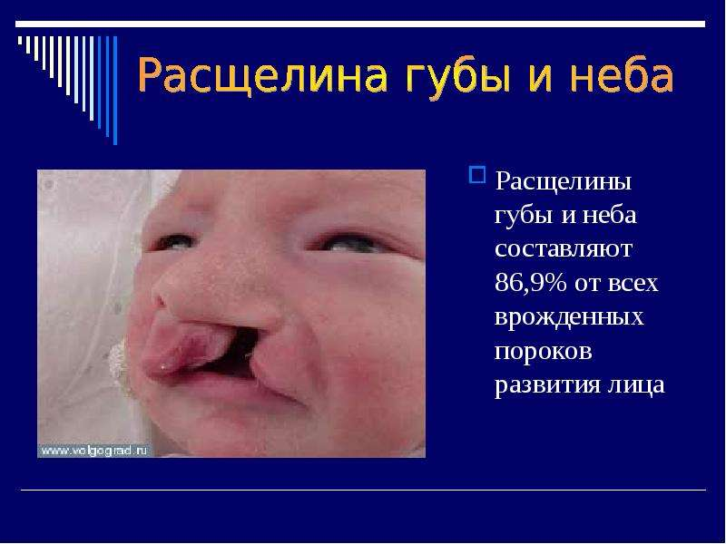 Расщелины губы и неба составляют 86,9% от всех врожденных пороков развития лица Расщелины губы и неб