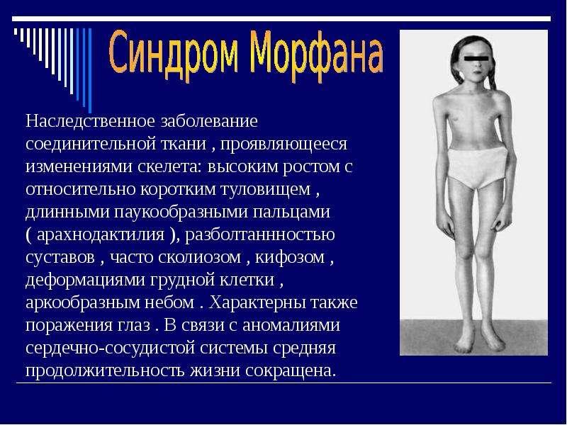Наследственные болезни человека, слайд 9