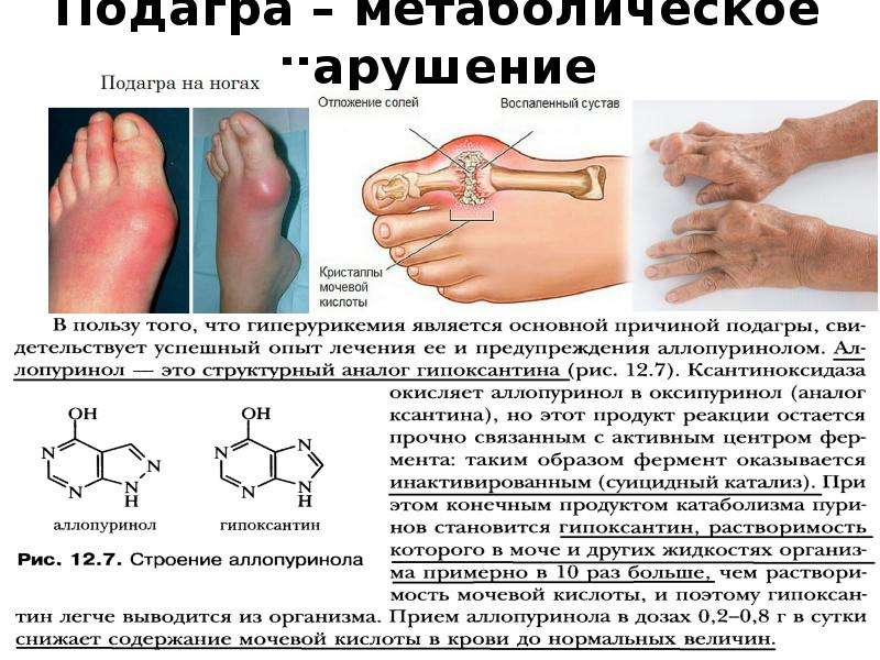 Подагра – метаболическое нарушение