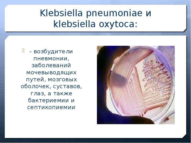 Клебсиелла окситока простатит полезна крапива простатит